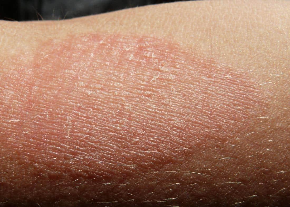 khasiat minyak zaitun untuk eczema